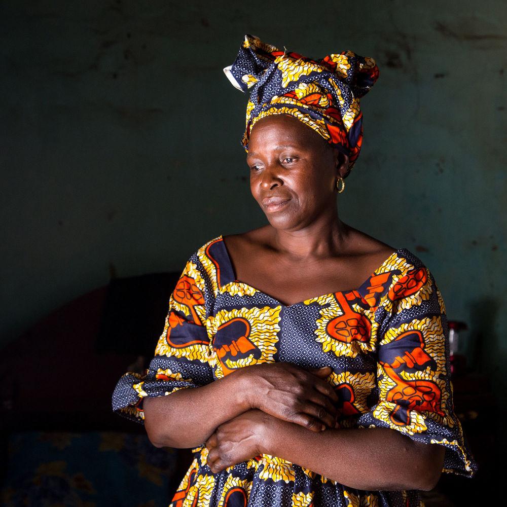Снимок Fatou Bojang фотографа Asha Miles из серии Scars, вошедший в шортлист фотоконкурса 2018 Sony World Photography Awards
